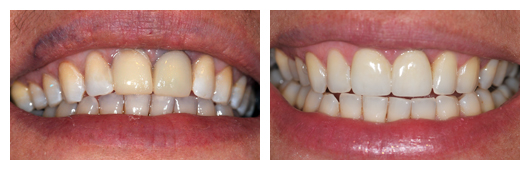BA_BeataMajnicz_Implant_and_Porcelain _Crowns_on_2_Front_Teeth