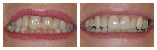 BA_JolantaWojtal_2_Porcelain_Crowns_on_Front_Teeth