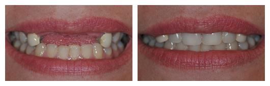 BA_Klim_Implant_Supported_Bridge_on_4_Front_Teeth
